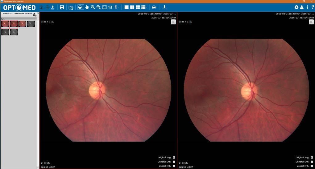 eyeseesolutions-optomed-smartscope